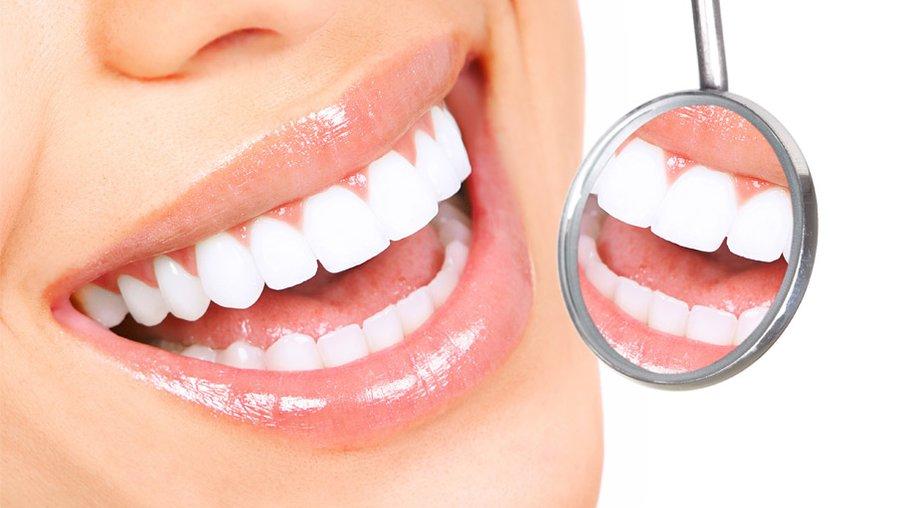 Zahn-Bleaching: Das sind die besten Tipps