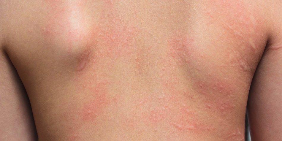 Allergie Ausschlag