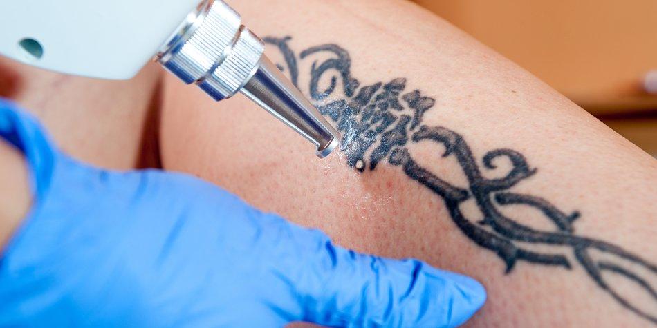 Laser-Tattooentfernung am Bein