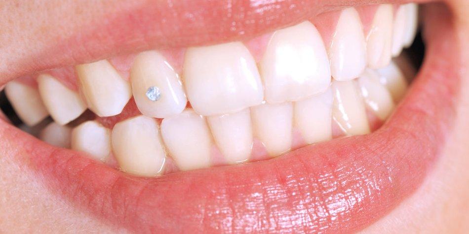 Zahnschmuck Top 6 Fakten Zu Zahnsteinchen Desiredde