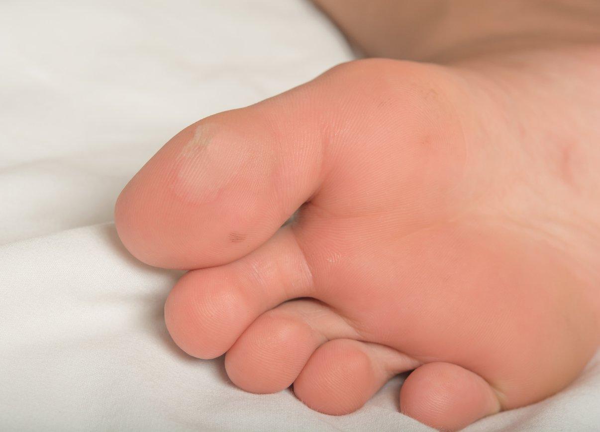 Blase unter dem Fuß