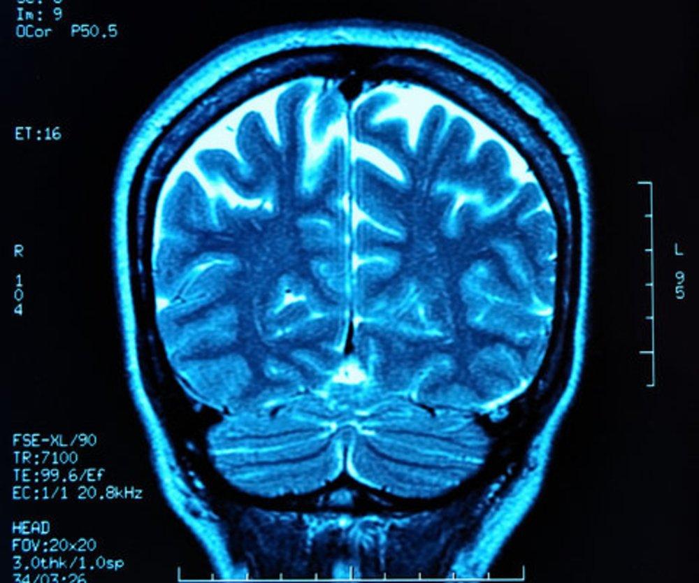 Pubertät: Gehirn verändert sich