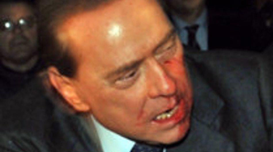 Silvio Berlusconi wurde angegriffen