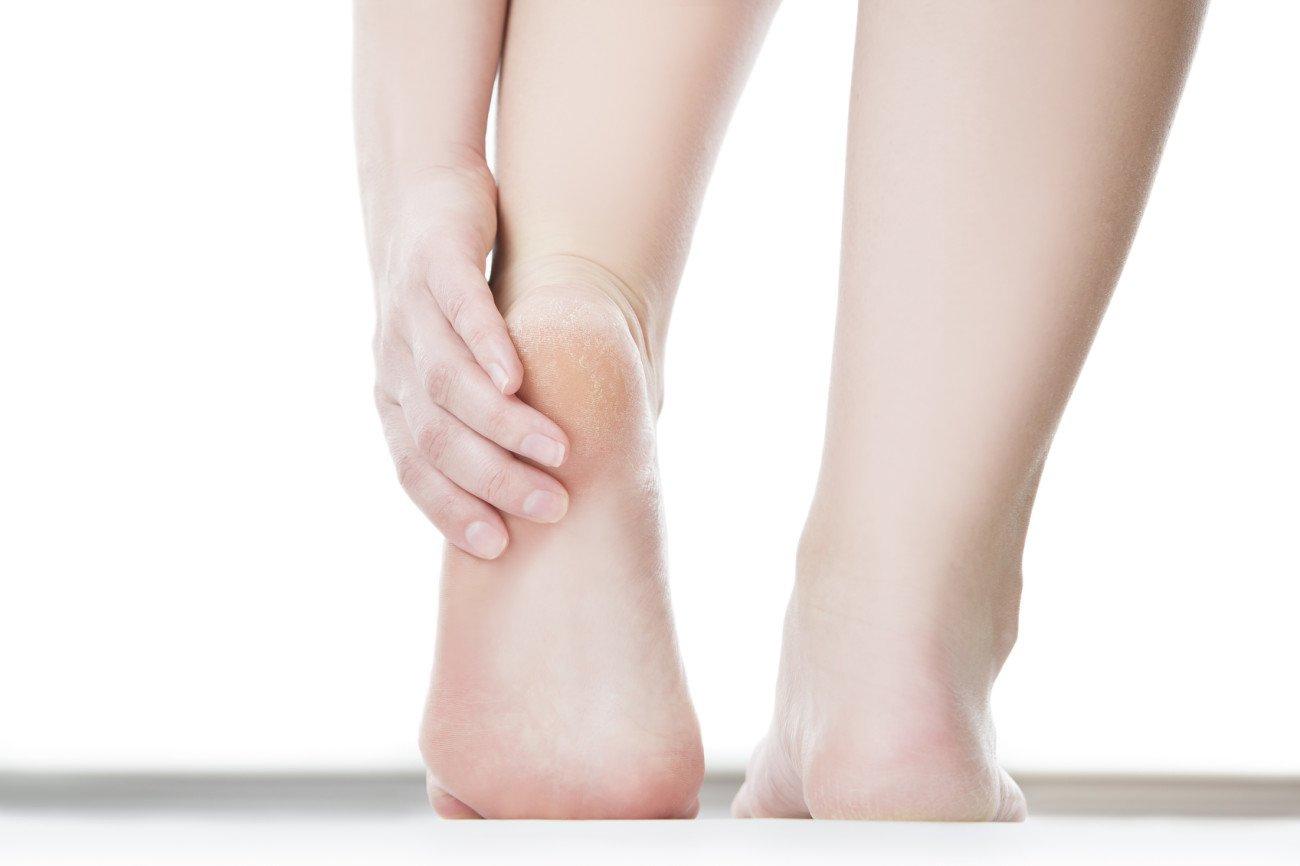 Hornhaut an den Füßen mit Hornhauthobel entfernen