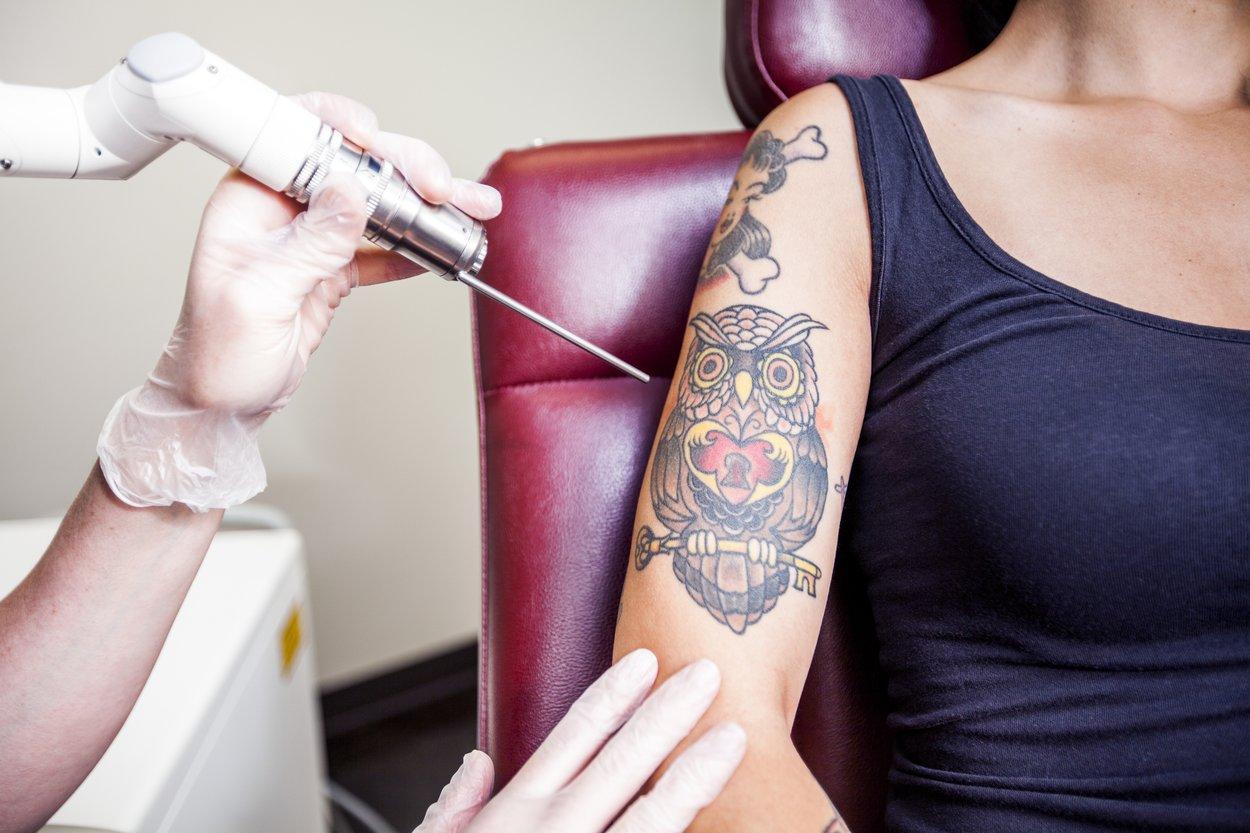 Tattoo entfernen Laserbehandlung