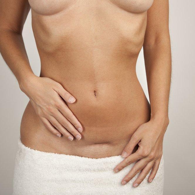 Sanfte Rückbildung nach Kaiserschnitt