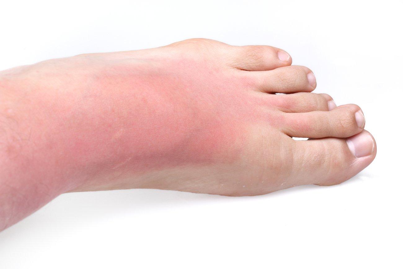 Verbrannte Füße