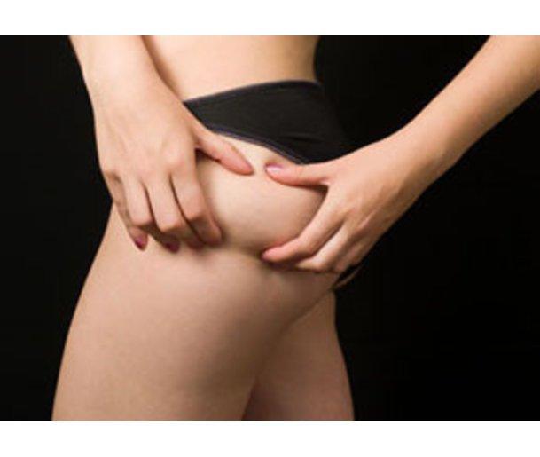 Cellulitecremes versprechen, die Dellen ohne Di�¤t oder Sport schwinden zu lassen.