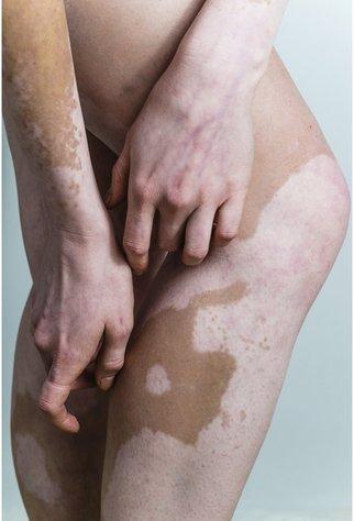 Vitiligo ist nicht gefährlich