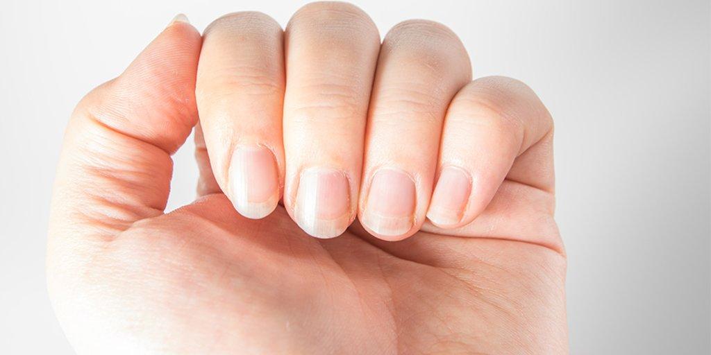 Wächst nicht nach fingernagel ▷ Blauer