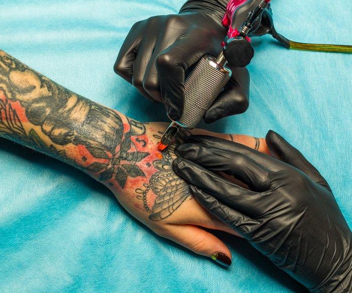 Tattoo-Allergie