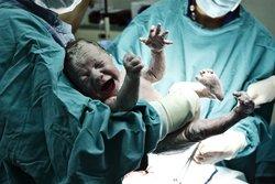Geburtstrauma beim Baby