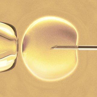 IVF - In Vitro Fertilisation