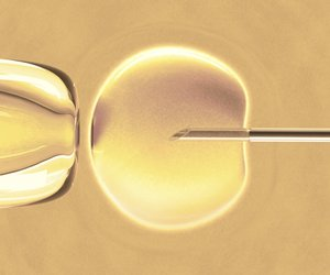 IVF: In-vitro-Fertilisation