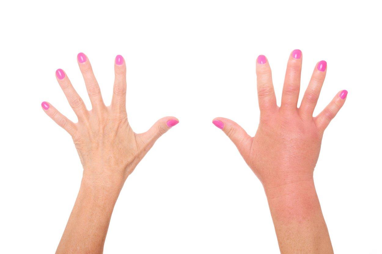 Geschwollene Hände in der Schwangerschaft