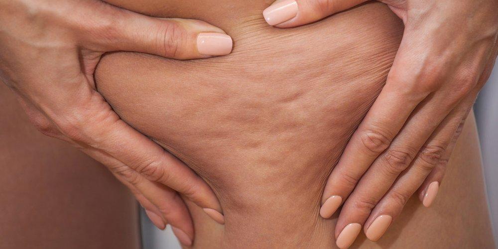 Das denken Männer wirklich über Cellulite