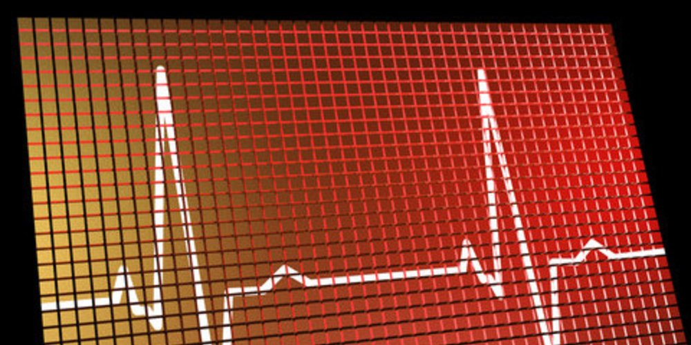 Herzalter Test