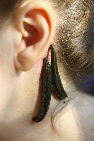 Blood sucking leechs (hirudo medicinalis) on woman's head