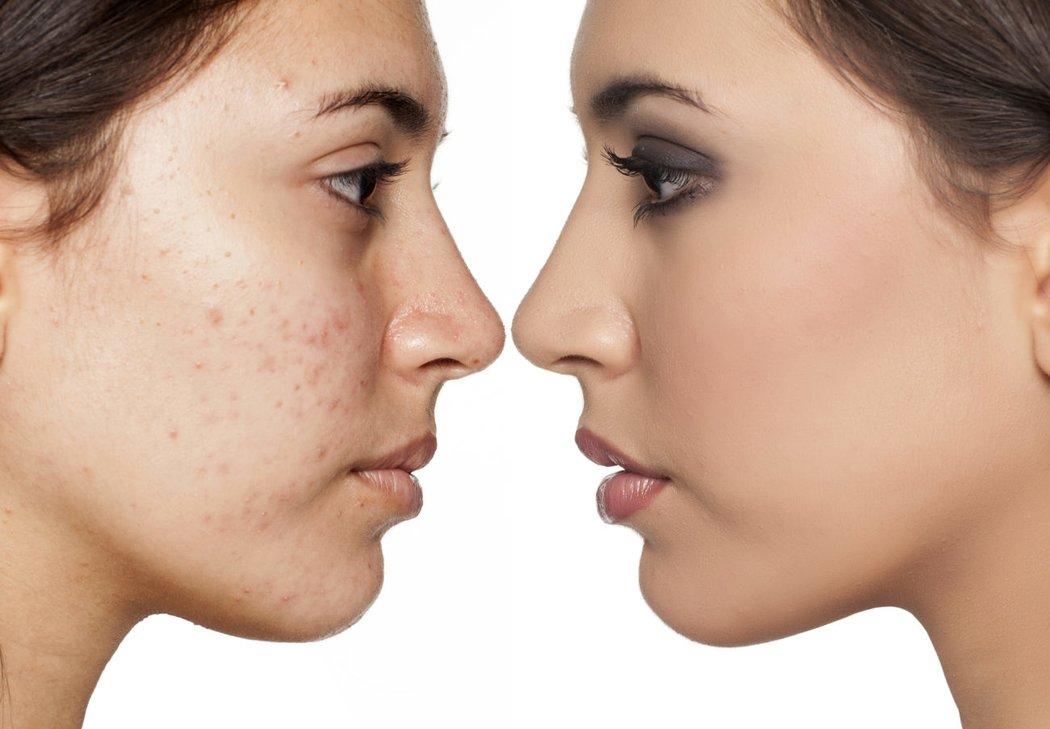 Die 6 Größten Make Up Fehler Bei Unreiner Haut Desiredde