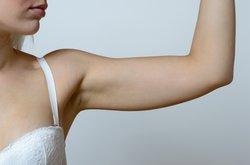 Verhütungsstäbchen am inneren Oberarm