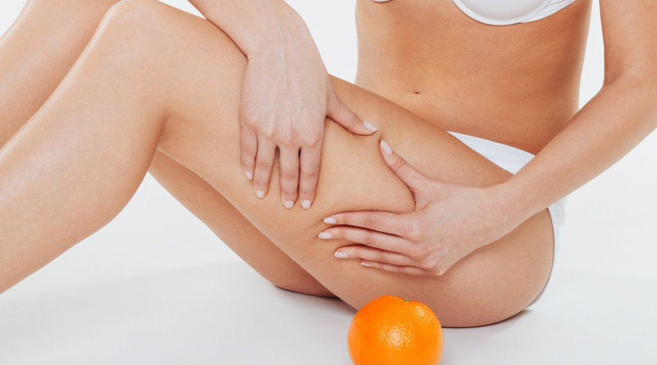 Hausmittel gegen Cellulite