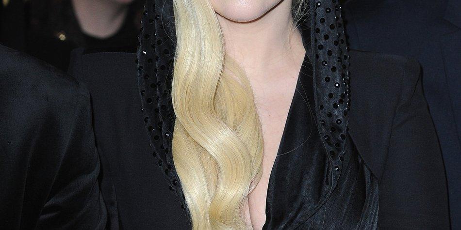 Lady Gaga wird von einem Tier gebissen