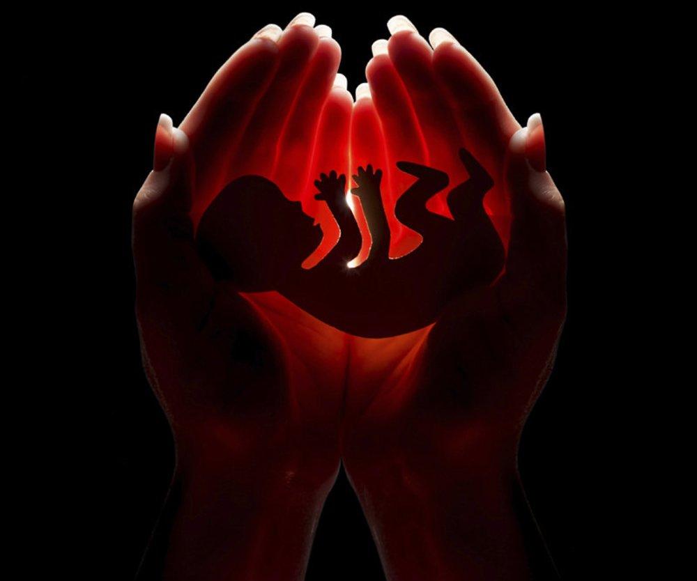 Schwangerschaftsabbruch