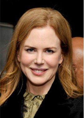 Nicole Kidman lässt sich nicht noch einmal Botox spritzen