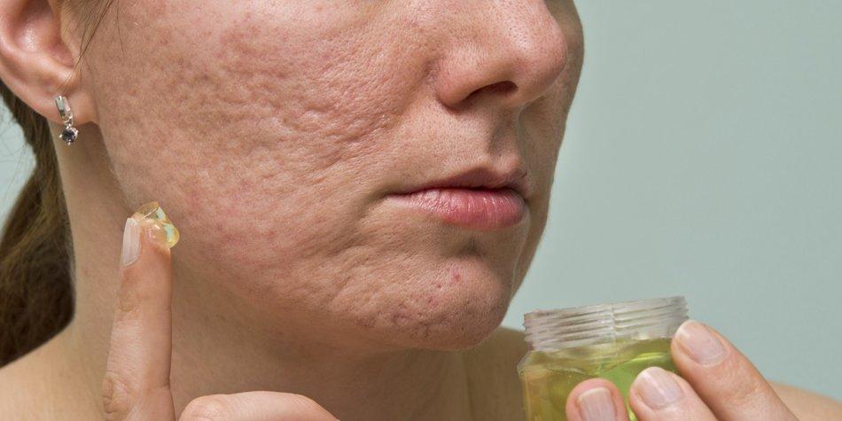 Aknenarben entfernen