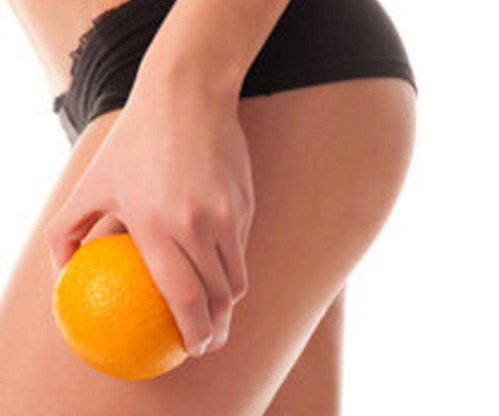Cellulite: Die richtige Ernährung im Kampf gegen die Dellen