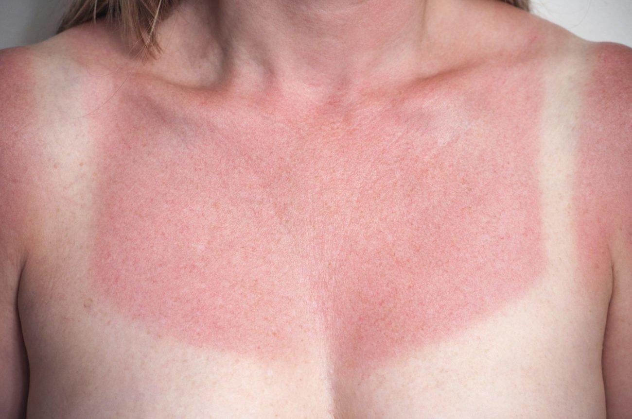 Hausmittel bei Sonnenbrand